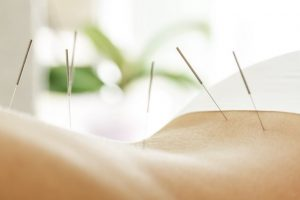 Female back with steel needles during procedure of acupuncture